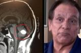 Kỳ tích: Khối u não đột nhiên biến mất trước lúc phẫu thuật
