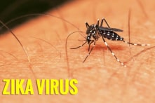 Phát hiện một bệnh nhân nhiễm virus Zika gây bệnh đầu nhỏ