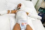 Ném 'bom xăng' kinh hoàng: Bé 3 tuổi bị nhiễm trùng nặng